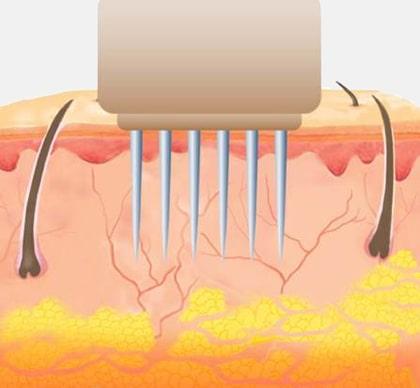 Лечение растяжек с помощью RF Microneedling Secret в клинике Юрия Кирстена в Берлине