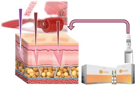 Лечение стрейч-полос с помощью Dermaroller дэрма роликом в домашних условиях