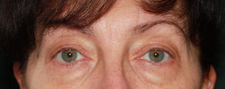 Beispiel Unterlider vor Unterlidstraffung / Augenlidkorrektur