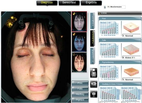 Diagnose des Hautzustandes bei Hautanalyse in Berlin am Wittenbergplatz