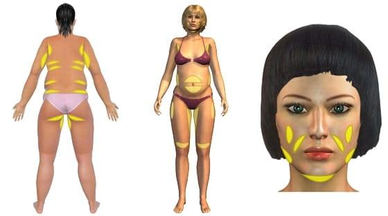 Mögliche Behandlungsareale für eine Fett weg Spritze