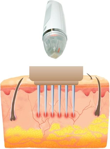 принцип еффекта microneedling rf secret при на коже во время процедуры против растяжек