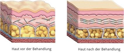 Ultraschall-Lifting-Vergleich-Vor-und-nach-der-Behandlung-Ultherapy vergleich