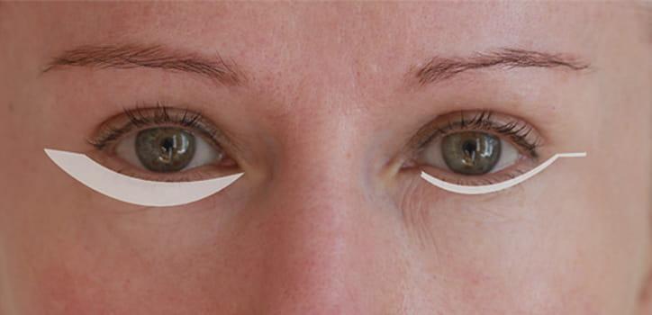 Unterlidstraffung - Augenlidkorrektur in Berlin beim Experten