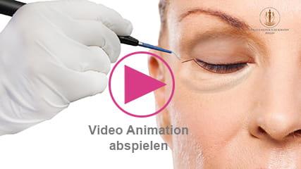 Video zum Ablauf iener Unterlidstraffung - Augenlidkorrektur