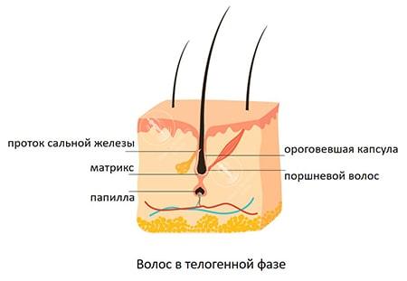 Телогеновый волос