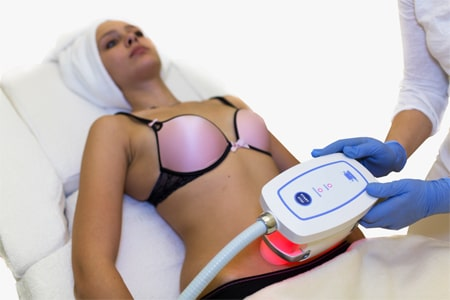 Вакуумный аппликатор Криолиполиза редукция жировых отложений напримере региона живота