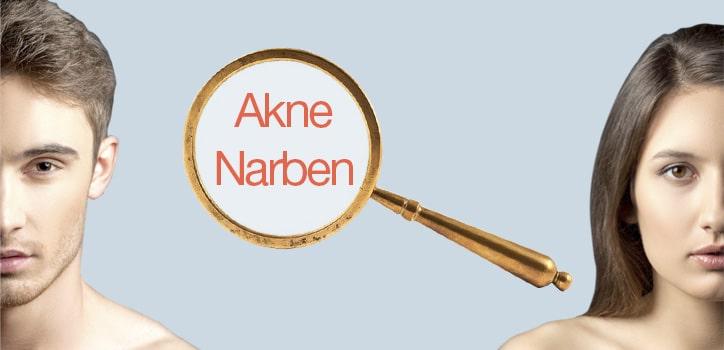 Aknenarben Behandlung Berlin