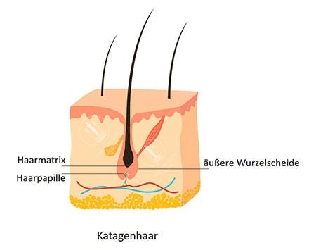 Darstellung der katagenphase beim Haarwachstum - Katagenhaar
