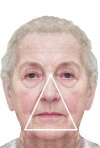 Нитевой лифтинг Аптос - треугольник старения