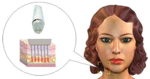 Faltenbehandlung mit Microneedling gemiensam mit Radiofrequenz - Secret rf