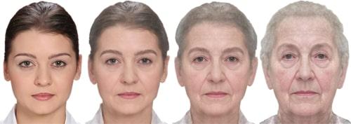 Gesichtsveränderung durch das Altern