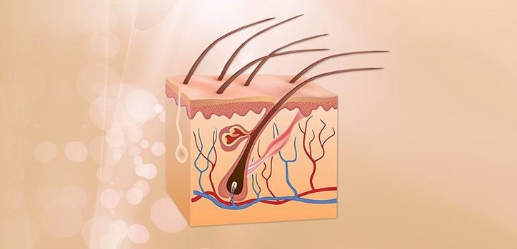 Haaruafbau bis hin zu Haarfolikel und subcutis
