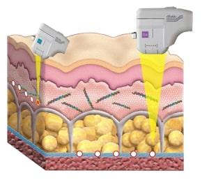 Hifu Behandlung mit kartuschentechnologie