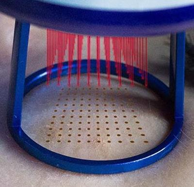 Laser Fraxel CO2 Haut und die Laserwirkung Praxis Dr Kirsten in Berlin-min