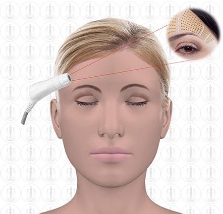 Lifting der Augenbrauen mit HiFu