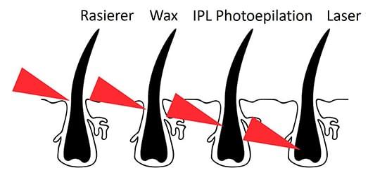 Methoden der Haarentfernung-im Vergleich zur Laser Haarentfernung