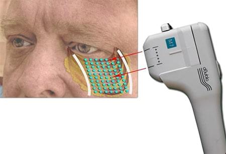 Tränensäcke entfernen mit Hifu durch Muskelstraffung-min
