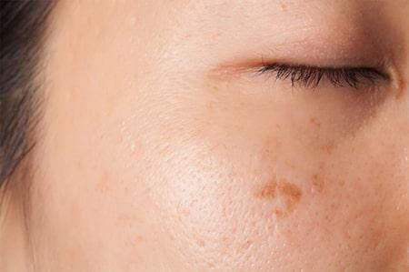 Beispiel einer Lentigo solaris im Gesicht