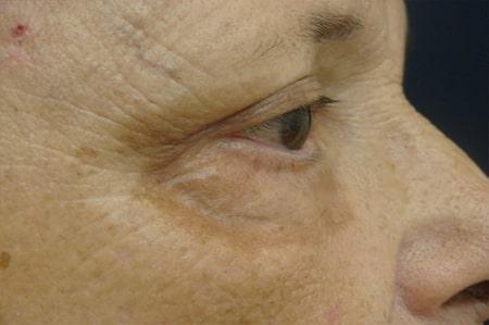 Beispiel einer Post-inflammatorischen Hyperpigmentierung
