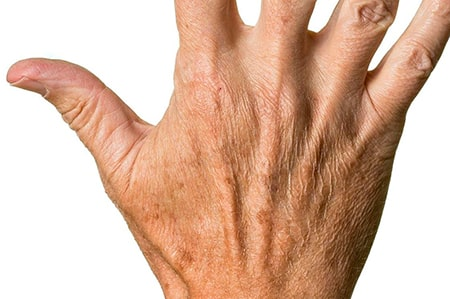 Beispiel von Altersflecken an der Hand