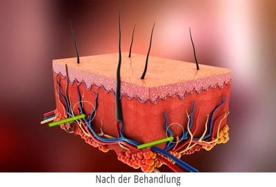 Blutschwaemmchen entfernen-mit Laser Berlin - Darstellung danach