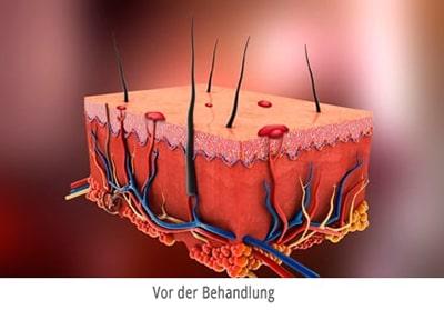 Blutschwaemmchen entfernen-mit Laser Berlin - Darstellung vor der behandlung