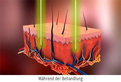 Blutschwaemmchen entfernen-mit Laser Berlin - Darstellung während