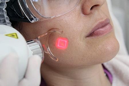 CO2 Fraxel Laser für Aknenarben Behandlung