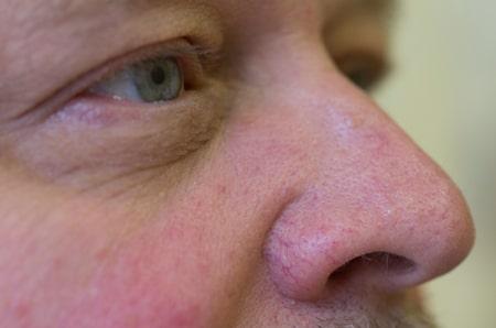 Couperose im Gesicht Behandlung mit Laser Praxis Juri Kirsten Berlin