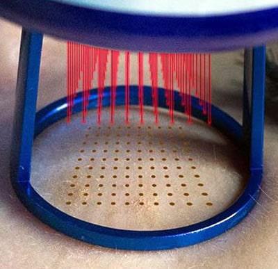 Darstellung der Funktion von Fraxel CO2 Laser bei Aknenarben Behandlung