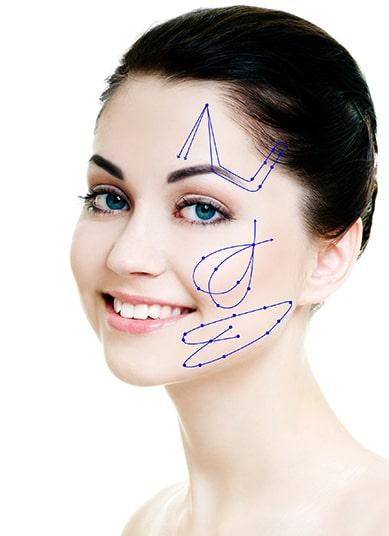 Fadenlifting Aptos - mögliche Areale für das Gesichtslifting