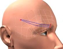Fadenlifting mit Aptos im Stirnbereich