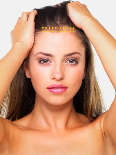 Mesohaar Mesotherapie gegen Haarrausfall - Praxis Juri Kirsten Berlin