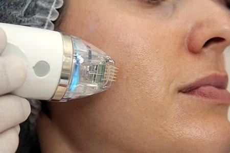 Microneedling RF als Kombination zur Aknenarben Entfernung
