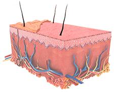 Darstellung der Haut nach einer Microdermabrasion Behandlung Berlin