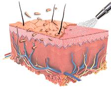 Darstellung der Reinigung der Haut während der Microdermabrasion Behandlung Berlin