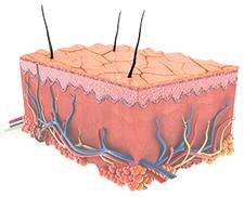 Darstellung von schlechter Haut vor der Microdermabrasion Behandlung Berlin