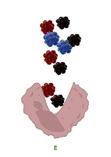 Darstellung-der-Tattoofarbpartikel bei der Aufnahme durch Fresszellen nach einer Tattooentfernung