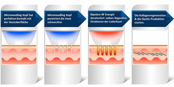 Принцип действя технологии микронидлнига с радио фреквенцией