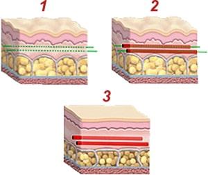 Размещение нитей в более глубоких слоях кожи
