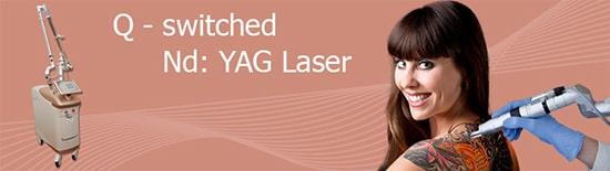 Q-Switched-ND-YAG-Lasertechnologie-für-dei-Tattooentfernung-Berlin