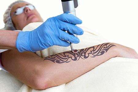 Tattoenternung mit Laser Berlin in der Praxis Juri Kirsten