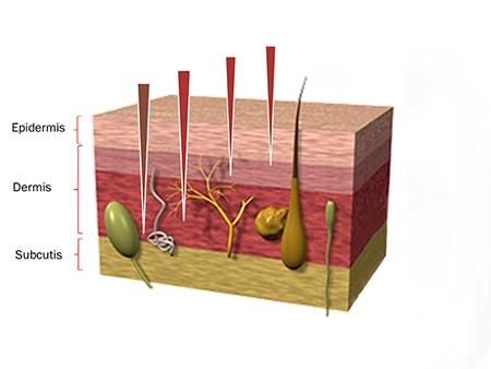 microneedling-berlin-radiofrequenz-einschleusen - darstellung der Hautschichten