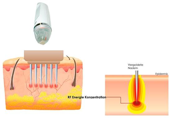microneedling-berlin-radiofrequenz-wirkung