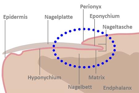Skizze des Nagles beim Nagelpilz